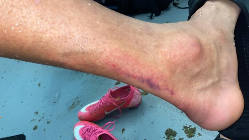 David Henen donne de ses nouvelles après sa sortie sur blessure